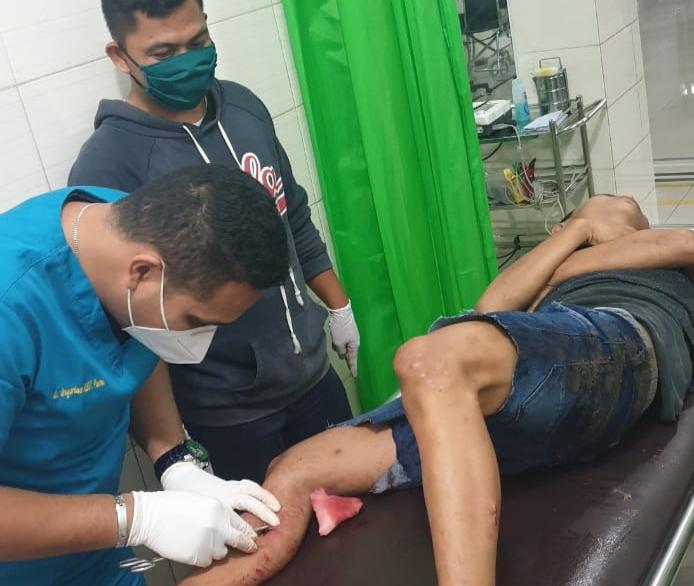 Residivis Curanmor Ini Meringis Kesakitan Kakinya Ditembak Tekab Polrestabes Medan